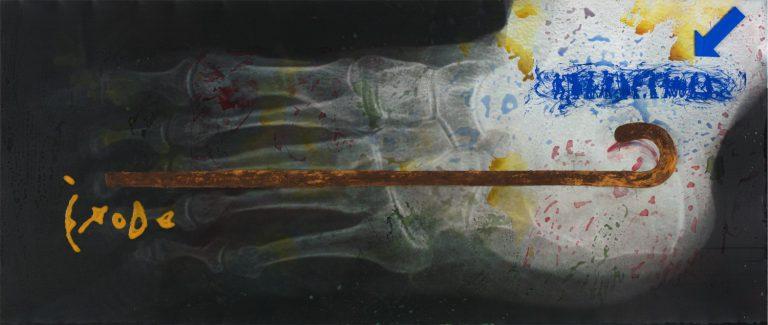 Èxode, 2011.