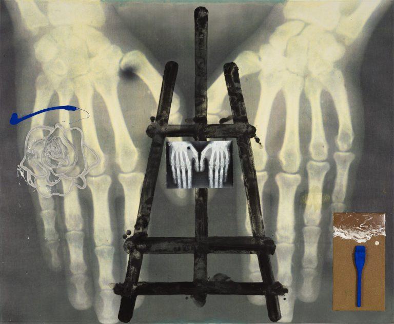 La tomba interior / La síndrome de Marfan, 2012.
